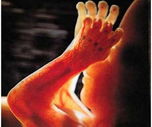 Het bedekken van de spieren over de beenderen